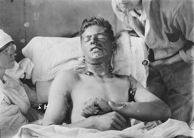 Unidentified Canadian soldier with burns caused by mustard gas. (item 1)